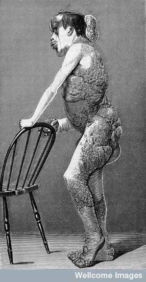 "Joseph Merrick (""Elephant Man"") im Profil, 1886"